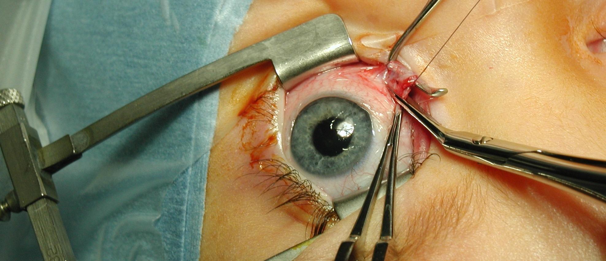 Operacja zeza