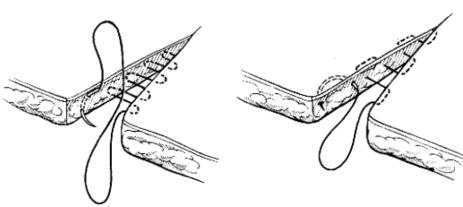 szew środskórny2